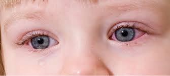 Viêm kết mạc (đau mắt đỏ)
