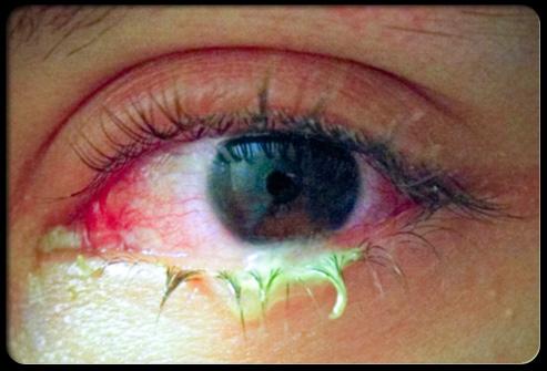 dấu hiệu đau mắt đỏ