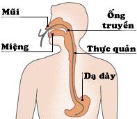 đau hay lở loét do nhiệt miệng