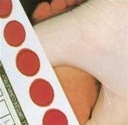 Lấy máu gót chân trẻ sơ sinh xét nghiệm sáng sọc thiểu năng tuyến giáp
