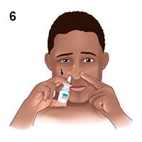 Sử dụng thuốc bơm xịt mũi