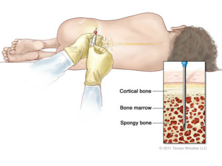 Sinh thiết và chọc hút tủy xương