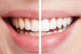 Tẩy trắng đạt kết quả tốt trên một hàm răng khỏe mạnh