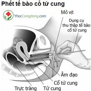 Phết tế bào cổ tử cung