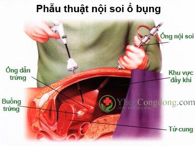 Hình ảnh minh họa phẫu thuật nội soi ổ bụng