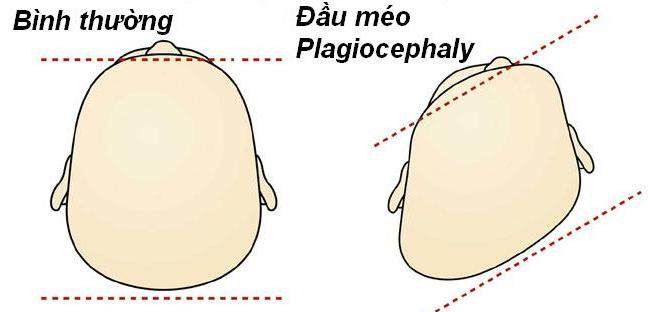 Description: plagiocephaly.jpg