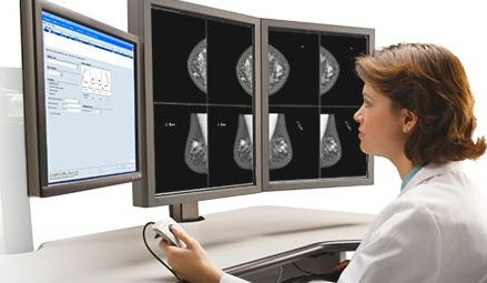 Description: BREAST MRI.jpg