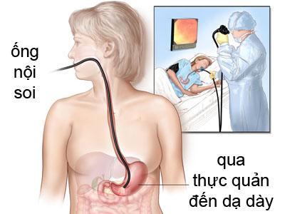 Nội soi dạ dày (Gastroscopy)