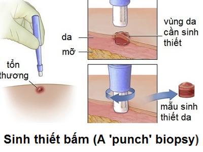 Sinh thiết (Biopsy)
