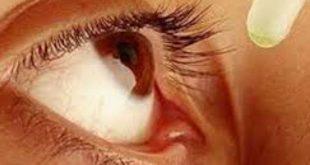 Glaucoma (Cườm nước) là bệnh gì ?