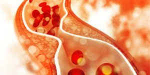 Làm gì khi mức cholesterol cao