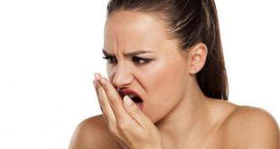 Mười vấn đề răng miệng hay gặp nhất