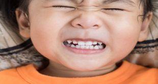 nghiến răng ở trẻ