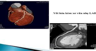 chụp ct đánh gia vôi hóa mạch vành