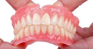 Mang lại nụ cười bằng hàm răng giả