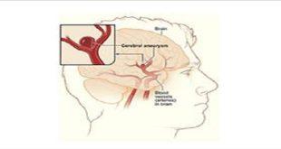 túi phình mạch não