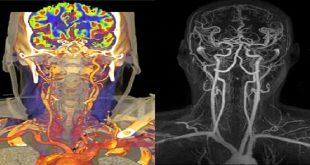 chụp mạch máu não bằng CT hoặc MRI