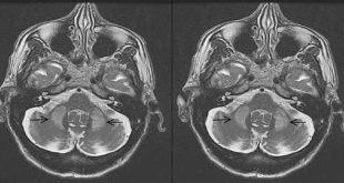 Rối loạn vận động trong bệnh teo đa hệ thống