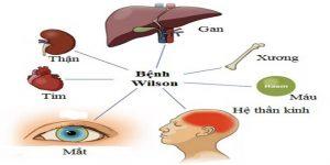 bệnh wilson