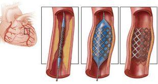 nong và đặt stent động mạch cảnh