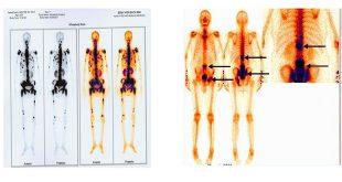 xạ hình xương