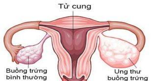 câu hỏi thường gặp về ung thư buồng trứng