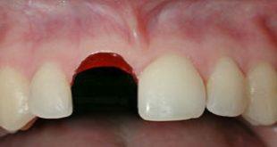những điều cần biết khi răng rơi khỏi ổ xương