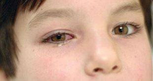 Viêm kết mạc : Đau mắt đỏ là gì ?