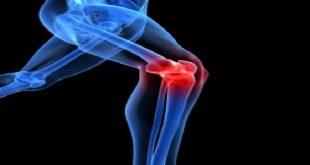 viêm xương khớp thoái hóa khớp