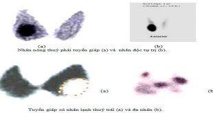 xạ hình tuyến giáp và nghiệm pháp hấp thu
