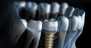 phẫu thuật nâng xoang và tái tạo sống hàm