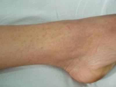 Chấm xuất huyết trên da ở chân