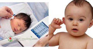 Suy giảm thính lực bẩm sinh