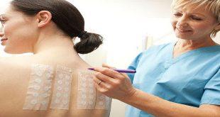 viêm da tiếp xúc dị ứng - kiểm tra dị ứng test da hay test áp