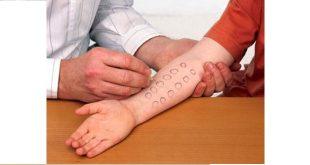 xét nghiệm lẩy da nội bì