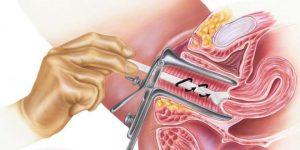 Giải thích những kết quả bất thường của xét nghiệm Pap