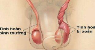 bìu có khối u và viêm