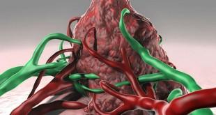 thành công bước đầu trong nghiên cứu vắc xin cá nhân (personalized vaccine) chống ung thư từ các bề mặt kháng nguyên đặc hiệu trên bề mặt tế bào ung thư