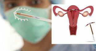 Những điều cần biết về dụng cụ đặt tử cung