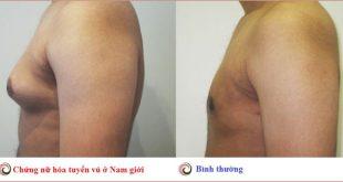 nữ hóa tuyến vú