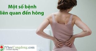 Một số bệnh liên quan đến hông