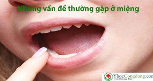 Những vấn đề thường gặp ở miệng