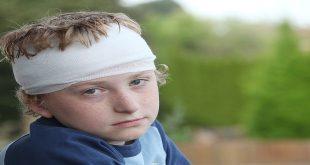 Chấn thương đầu ở trẻ em do ngược đãi