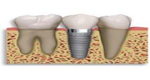 implant nha hoa cho người mất răng toàn bộ