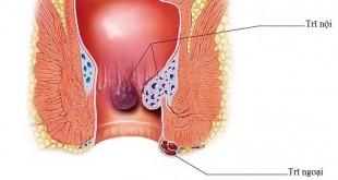 Nguyên nhân bệnh trĩ thường gặp và cách điều trị