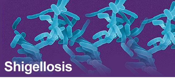Nhiễm trùng shigella -lỵ trực trùng