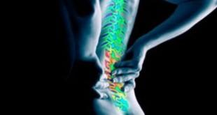 đau thắt lưng không đặc hiệu ở người lớn