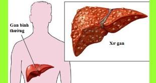 xơ gan và các biến chứng của xơ gan