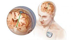 kích thích não sâu