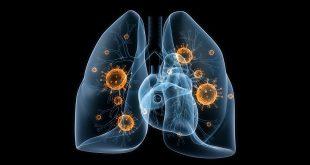 Một số bệnh liên quan đến viêm nhiễm đường hô hấp dưới